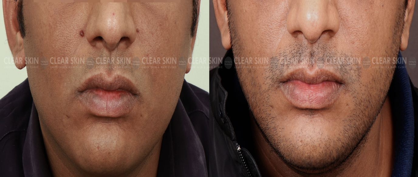 Moles_BeforeAfter