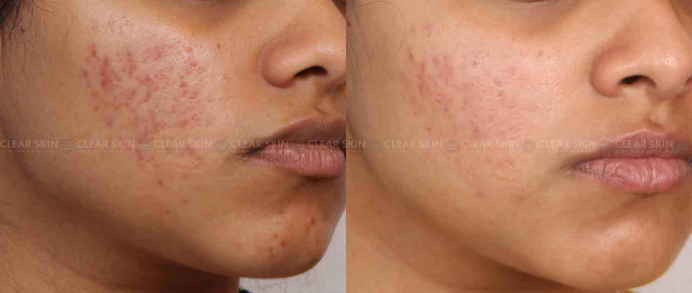 Acne_BeforeAfter