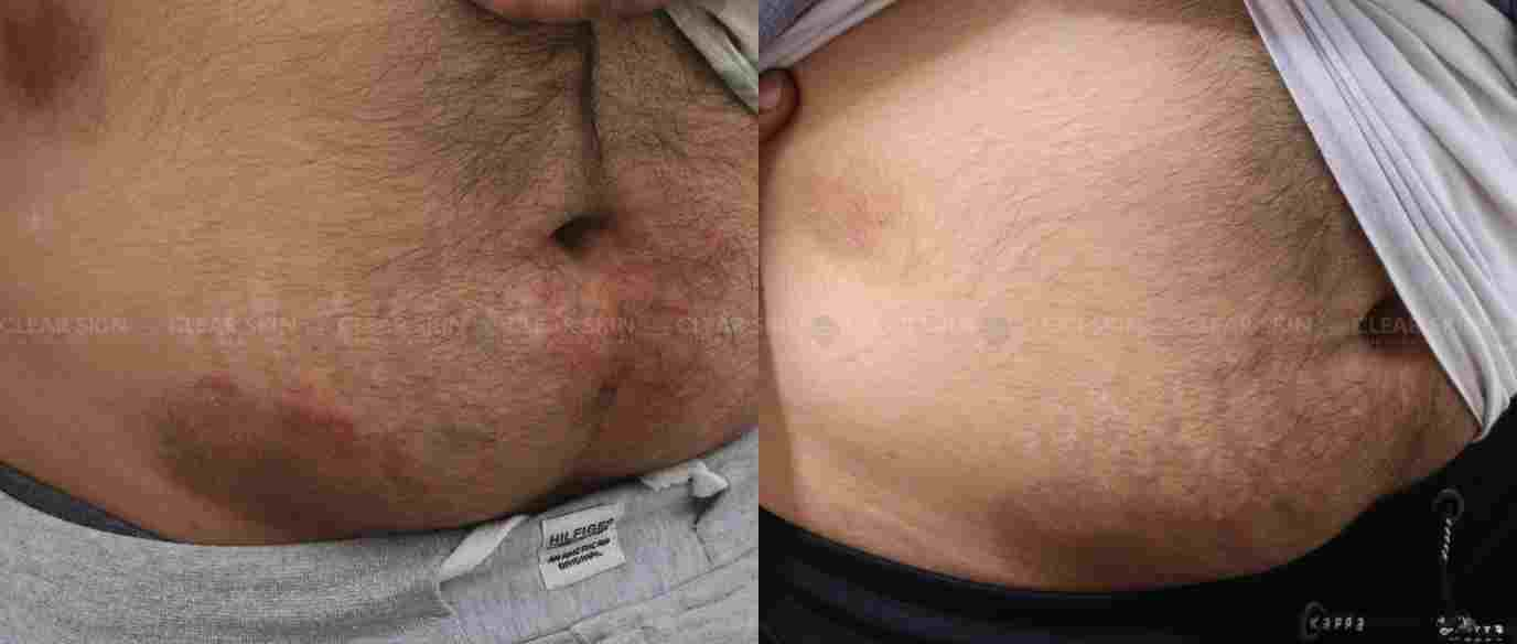 Tinea_BeforeAfter