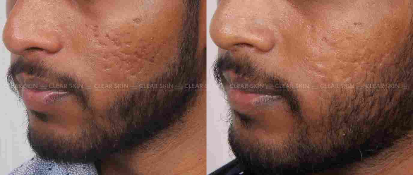 AcneScars_BeforeAfter
