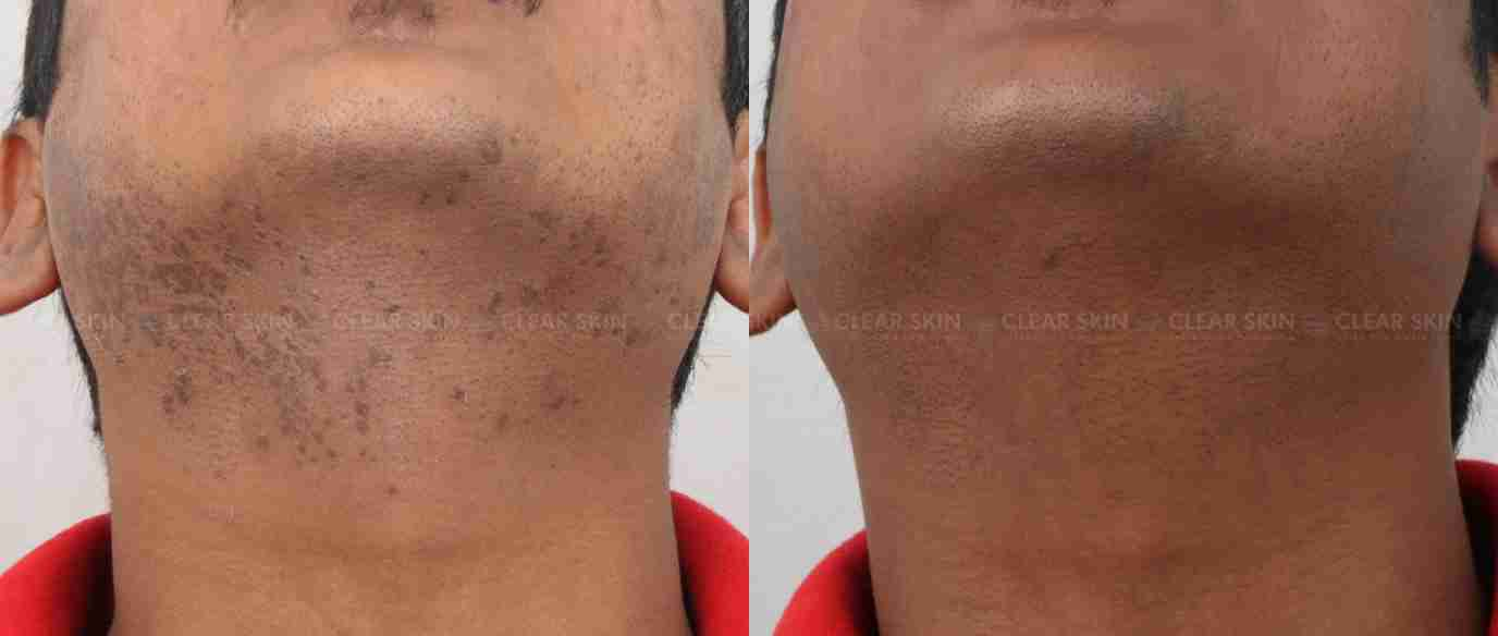 Warts_BeforeAfter