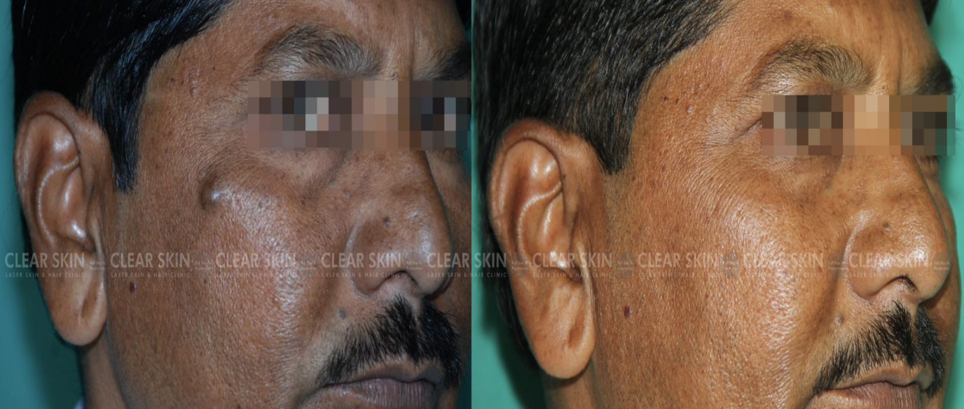 Cyst_BeforeAfter