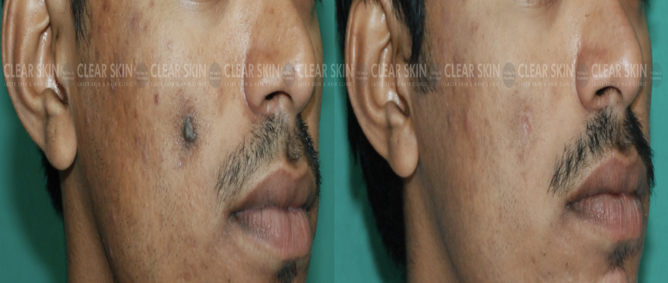 Cyst_BeforeAfter1