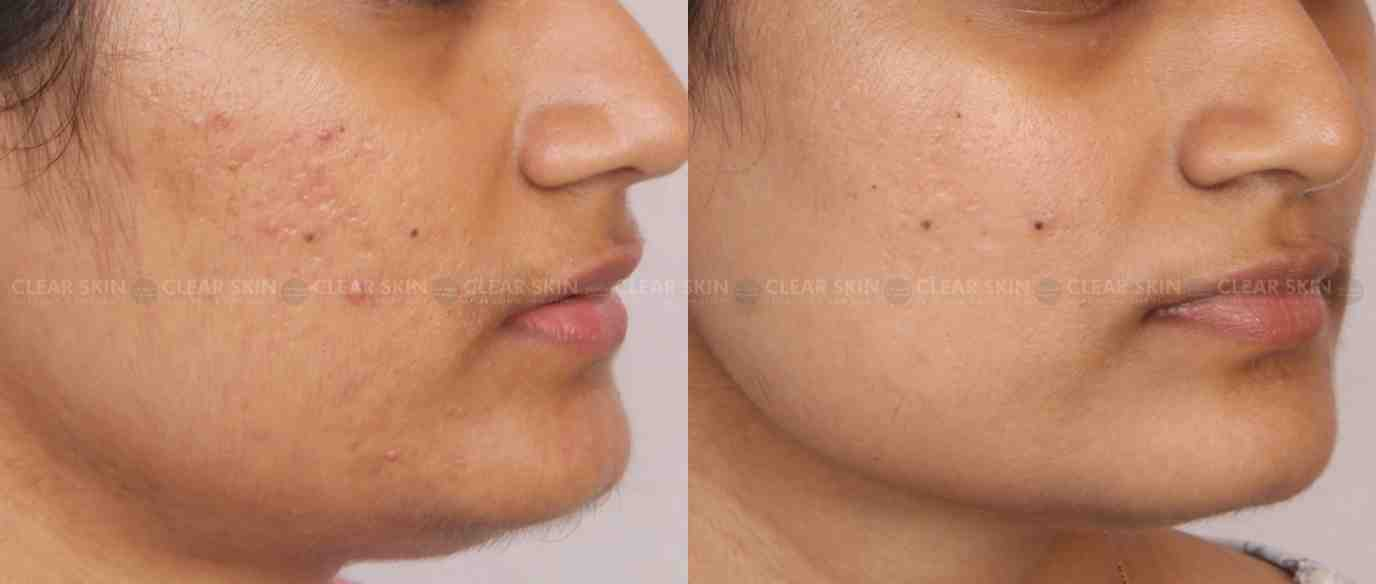 AcneScars_BeforeAfter1