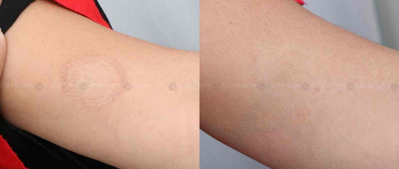 Tinea_BeforeAfter1