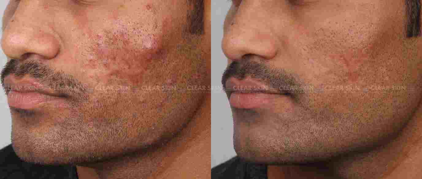 Acne_BeforeAfter2
