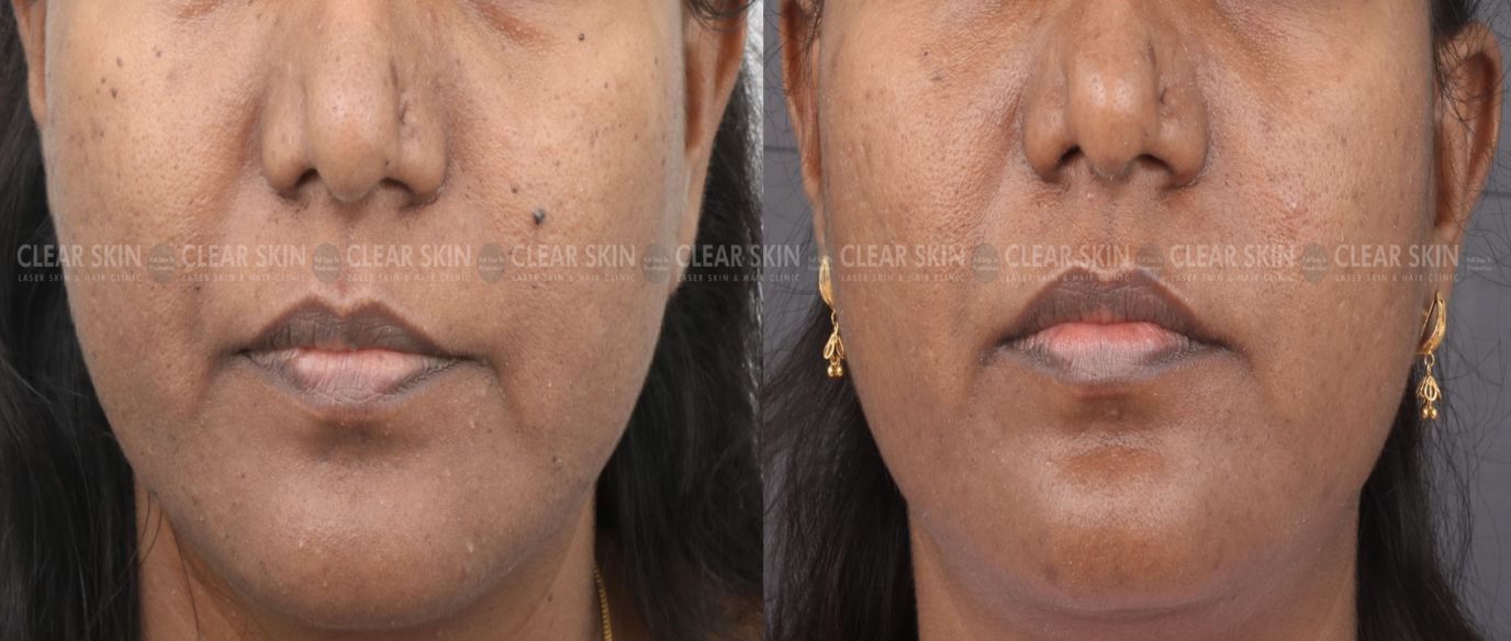 Moles_BeforeAfter2