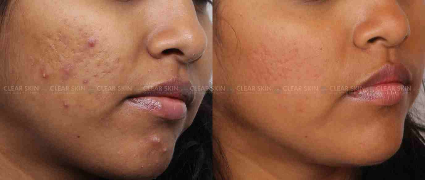 AcneScars_BeforeAfter2