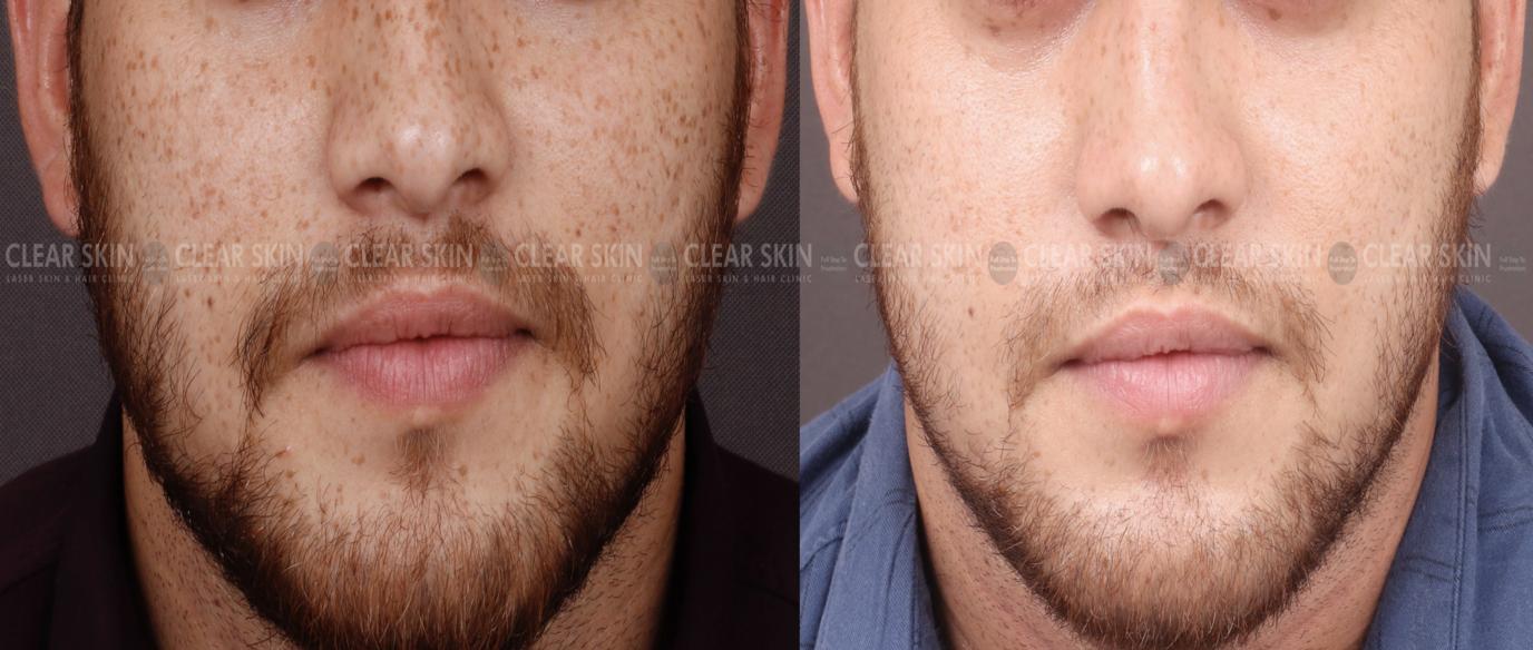 Freckles_BeforeAfter2
