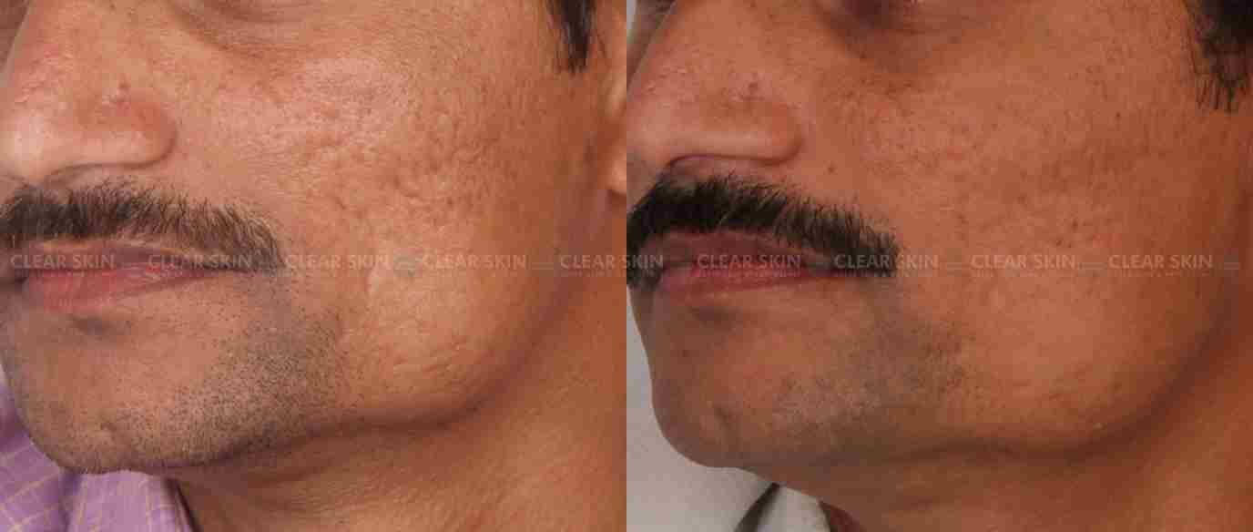AcneScars_BeforeAfter3