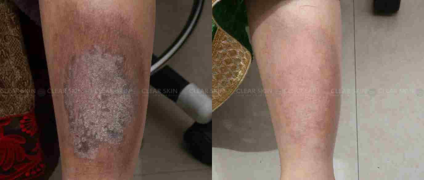 Eczema_BeforeAfter2