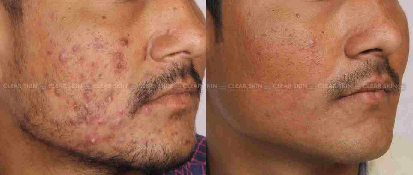 Acne_BeforeAfter3