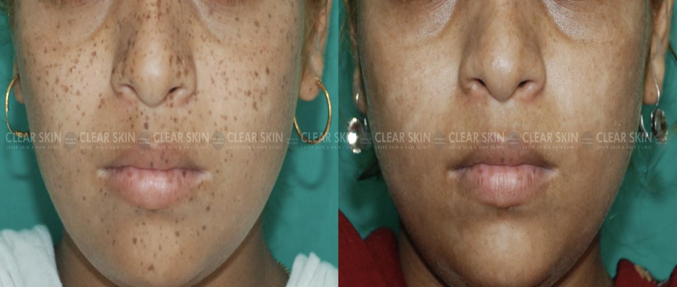 Freckles_BeforeAfter3