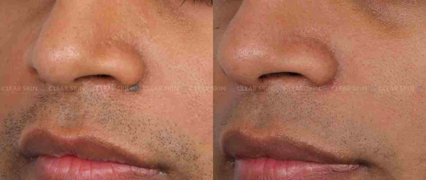Moles_BeforeAfter3