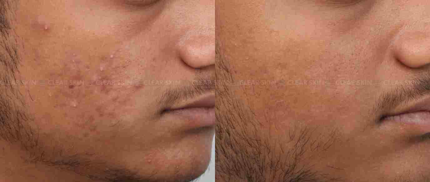 AcneScars_BeforeAfter4