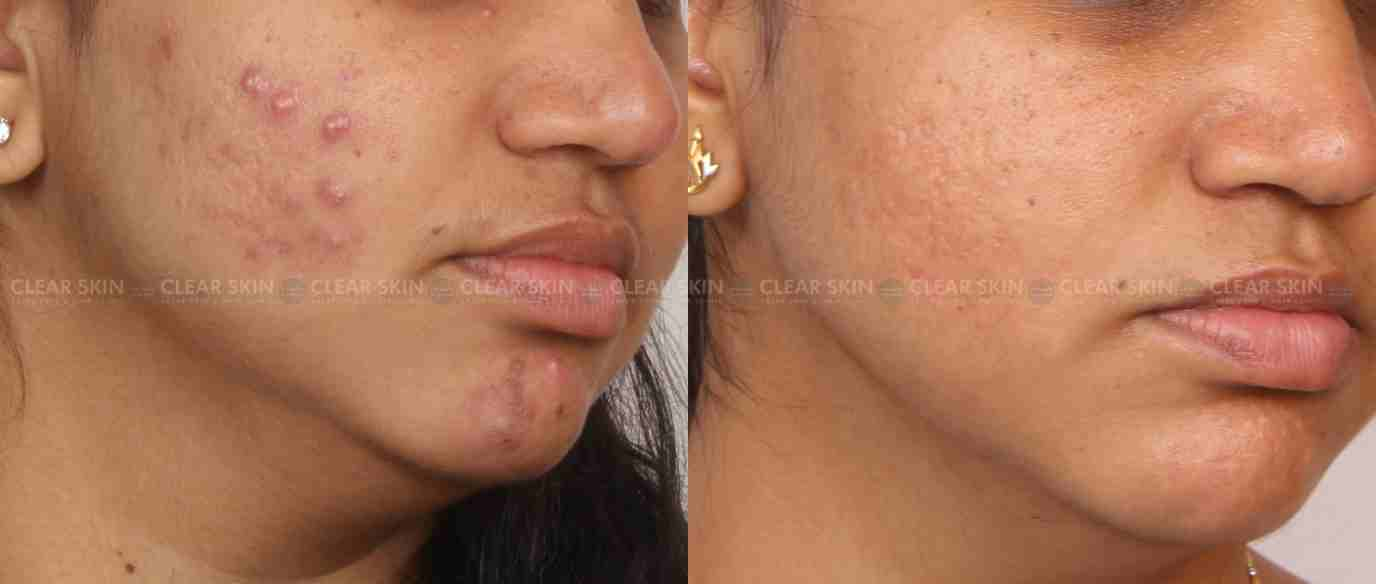 Acne_BeforeAfter4
