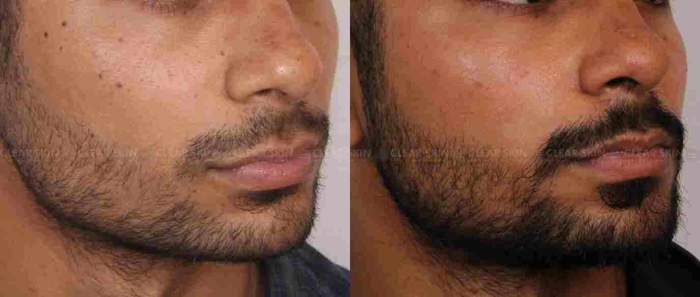 Moles_BeforeAfter4