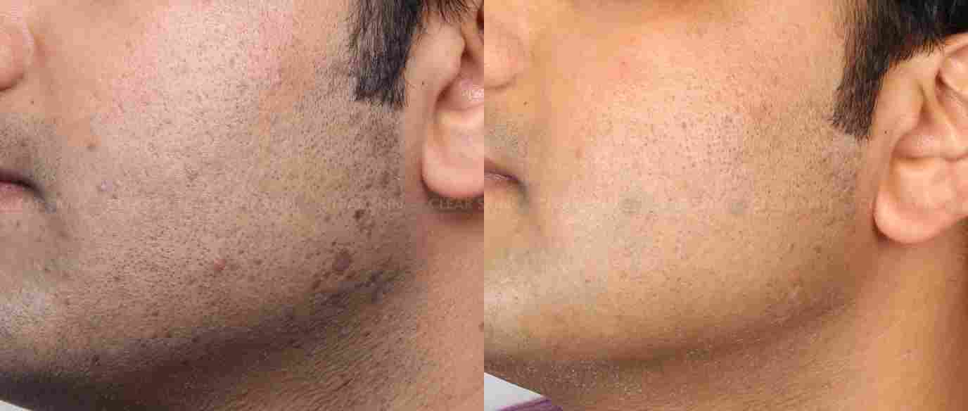 Warts_BeforeAfter4