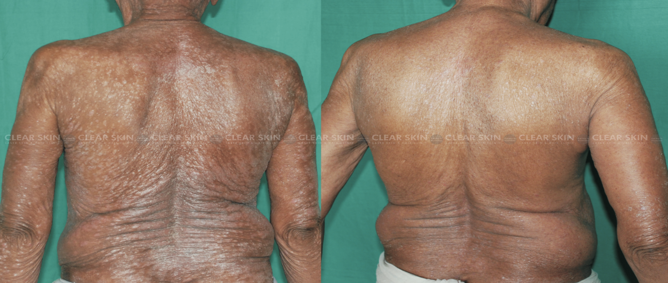 Psoeiasis_BeforeAfter4New
