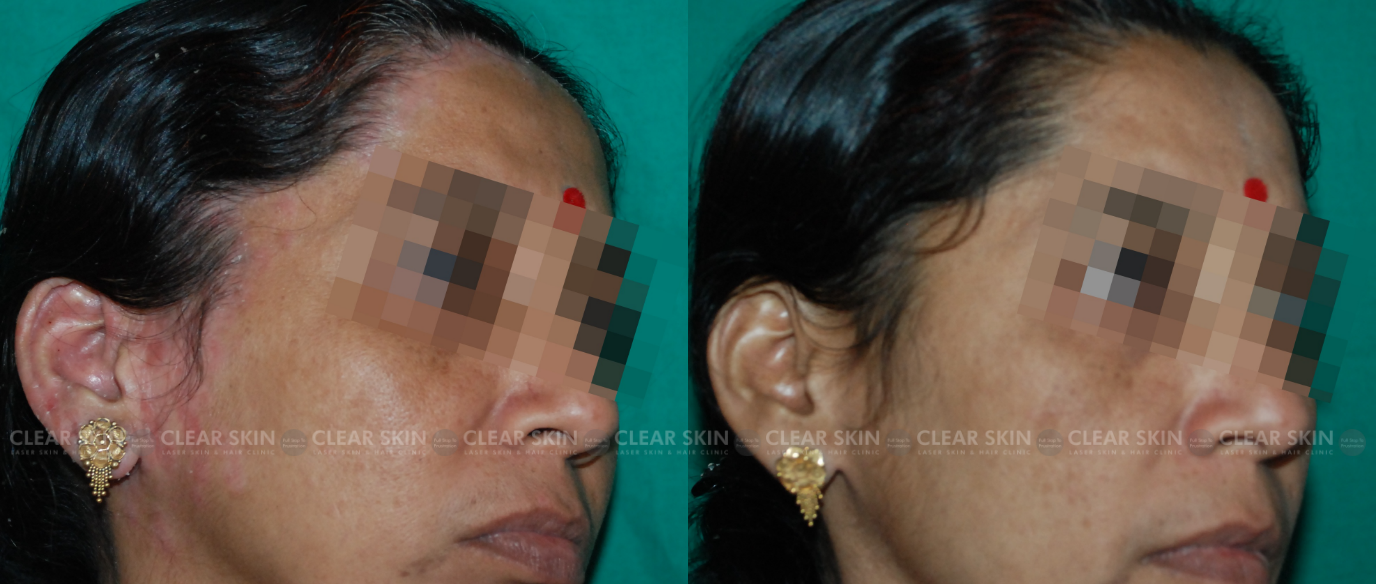 Psoriasis_BeforeAfter5