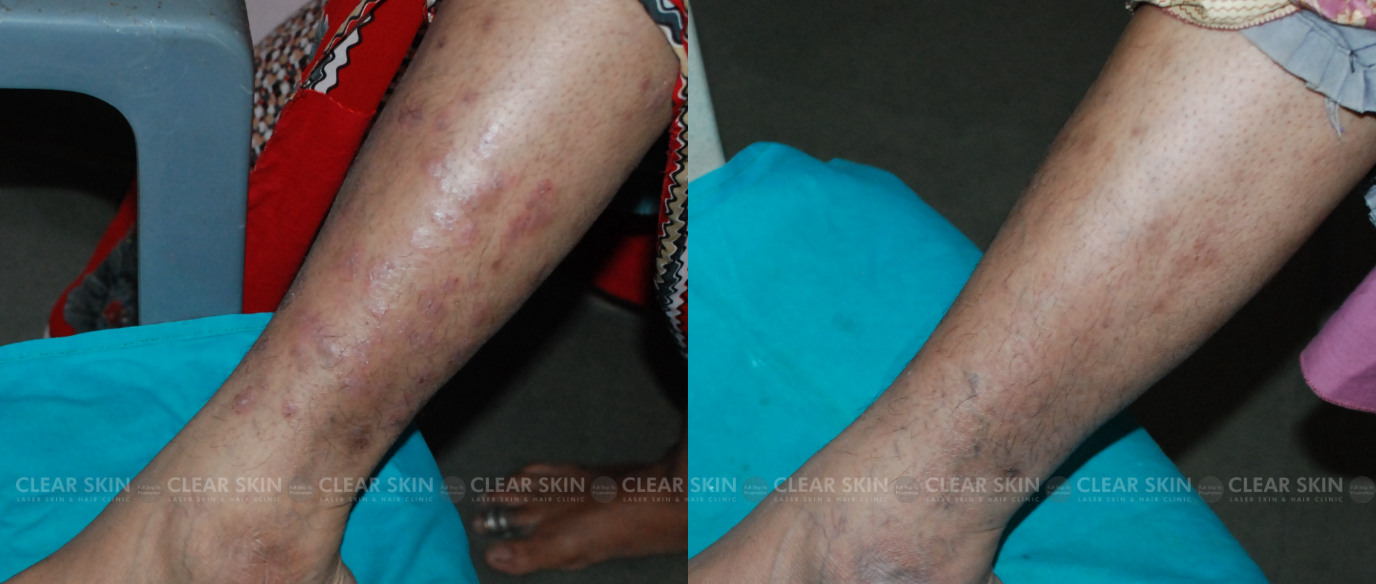 Psoriasis_BeforeAfterNewOld