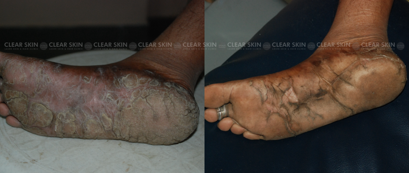 Psoriasis_BeforeAfter1