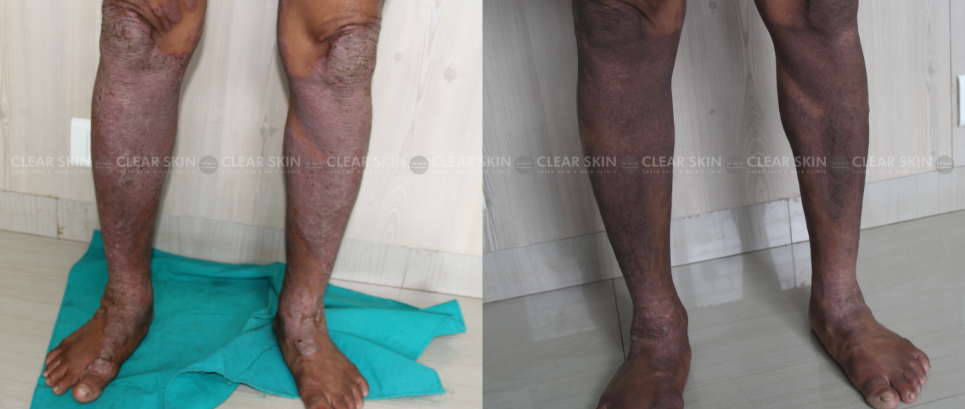 Psoriasis_BeforeAfter2